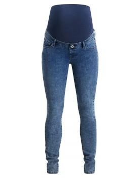 Supermom Skinny Umstandsjeans Acid Blue 20211011